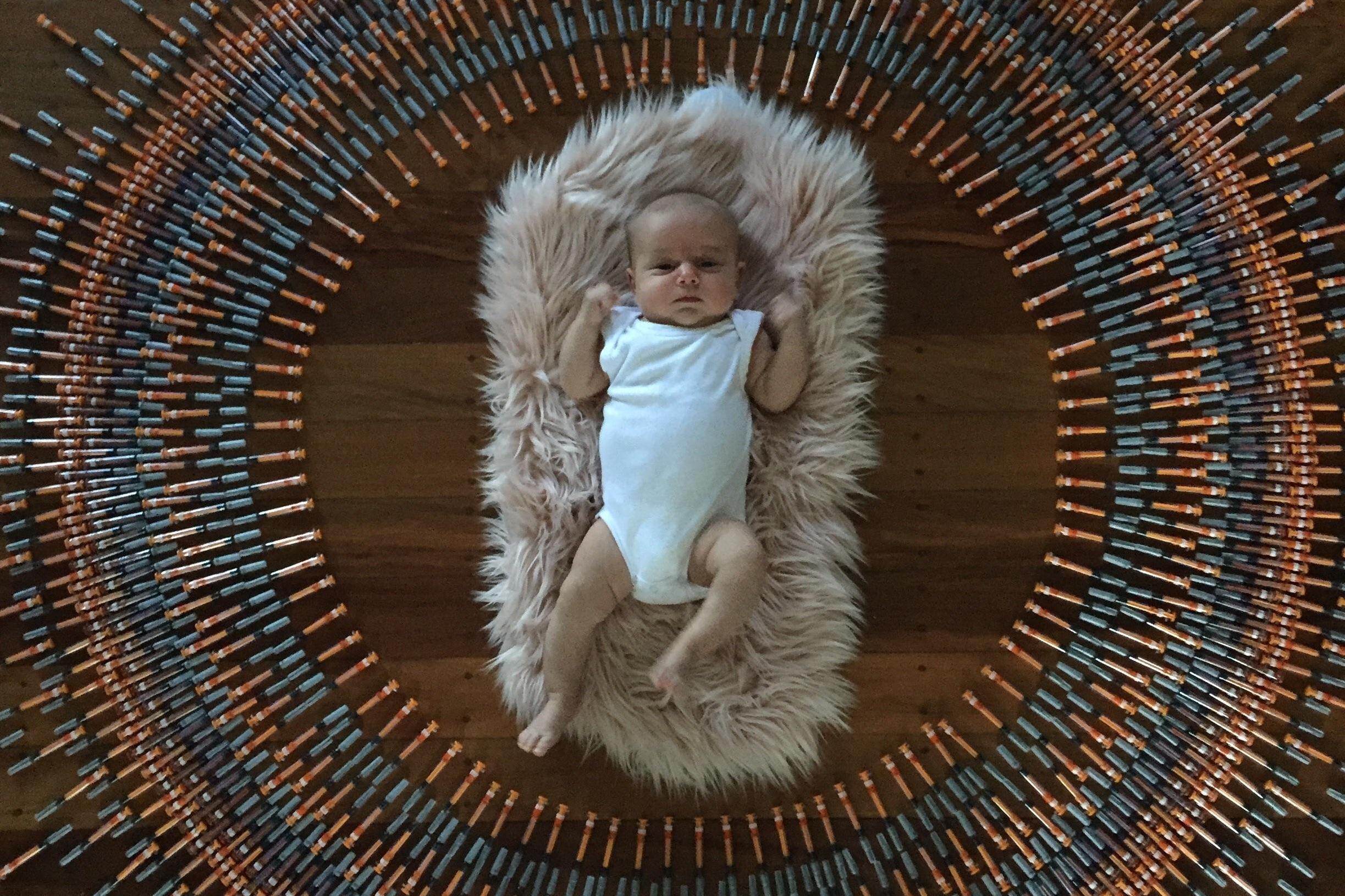 Bebê clexane trombofilia síndrome do anticorpo antifosfolipide