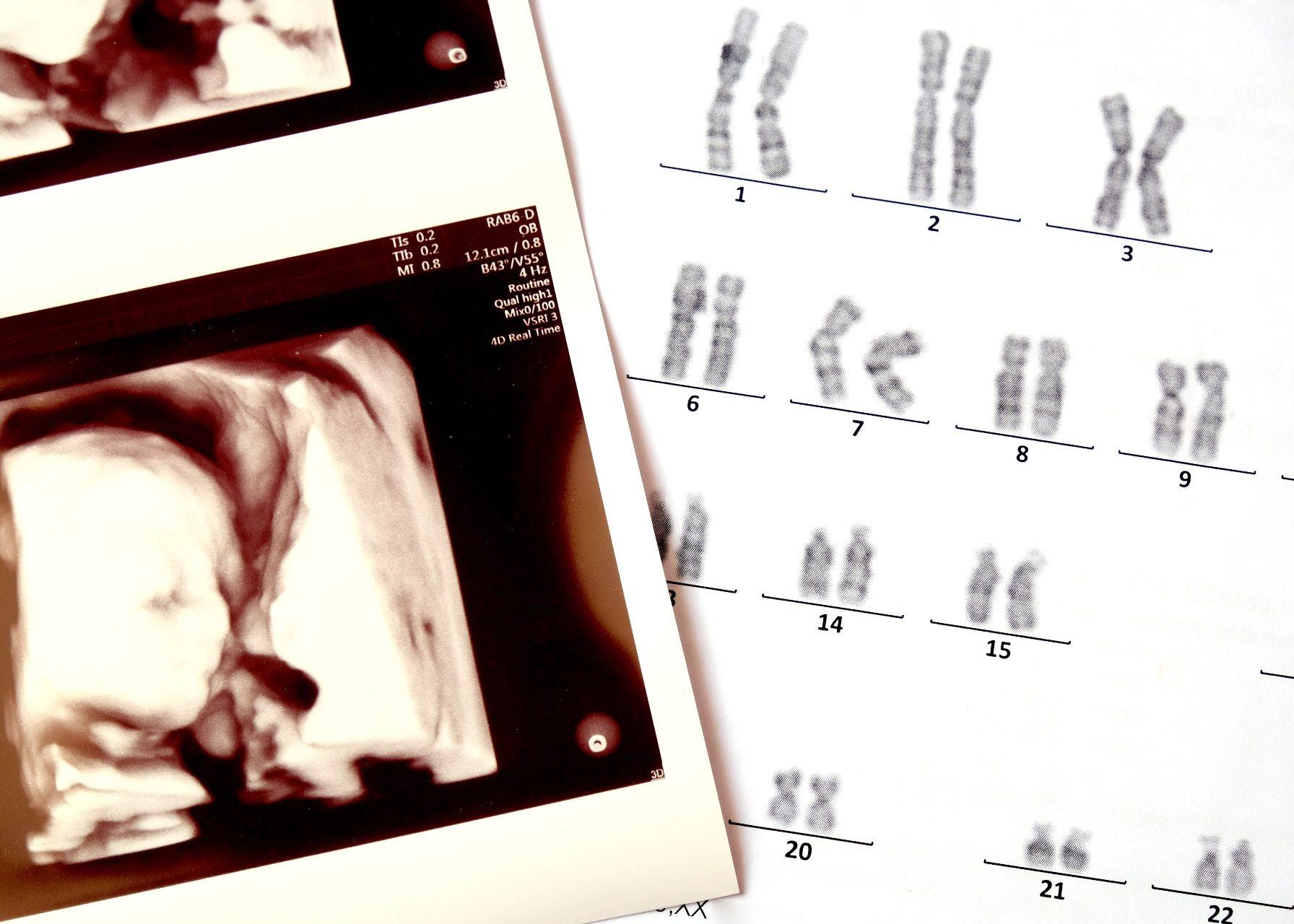Trissomia cariótipo banda g alterado down edwards patau síndrome