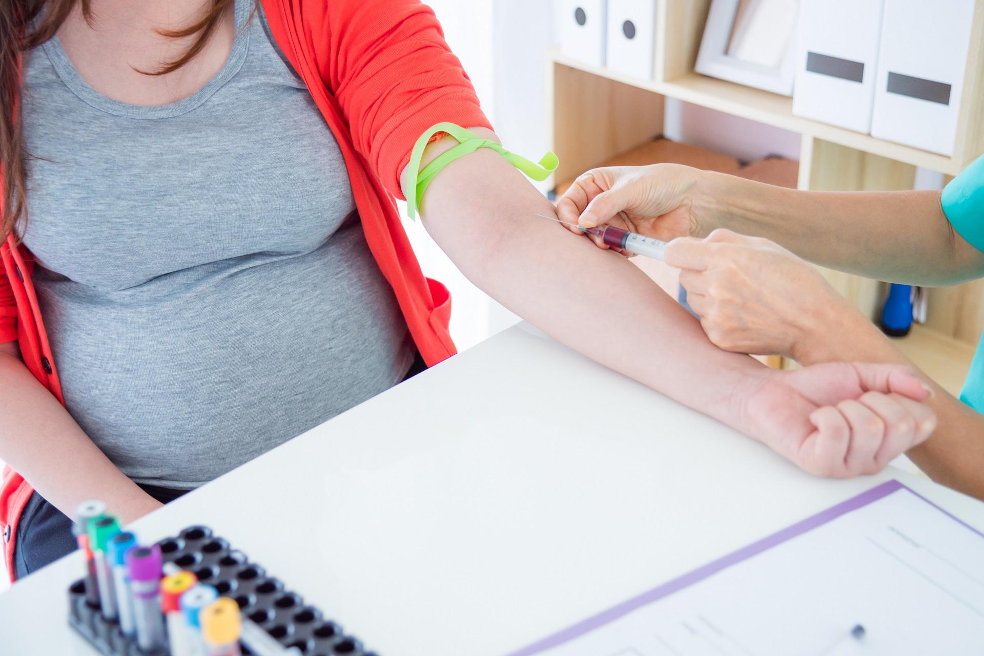NIPT pré-natal não invasivo unimed convênio SUS