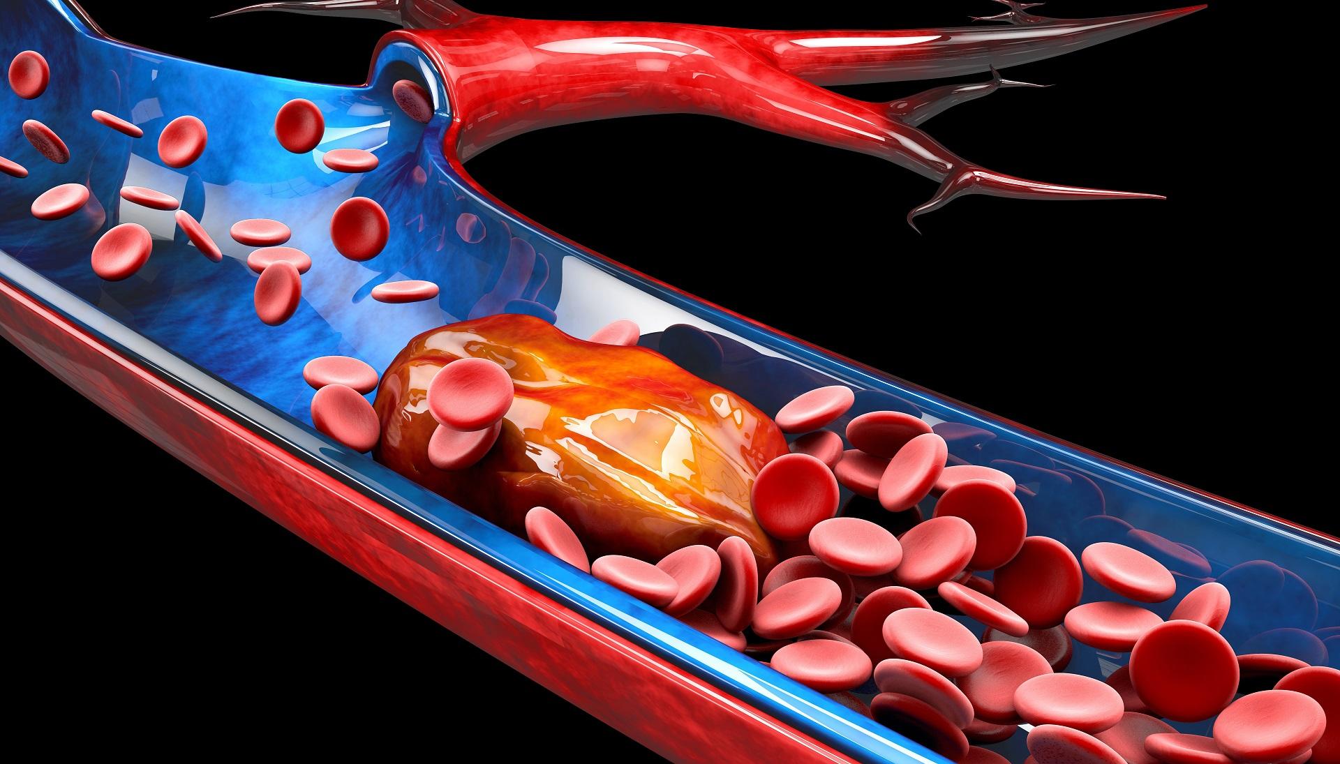 mutação do fator V de Leiden trombofilia hereditária