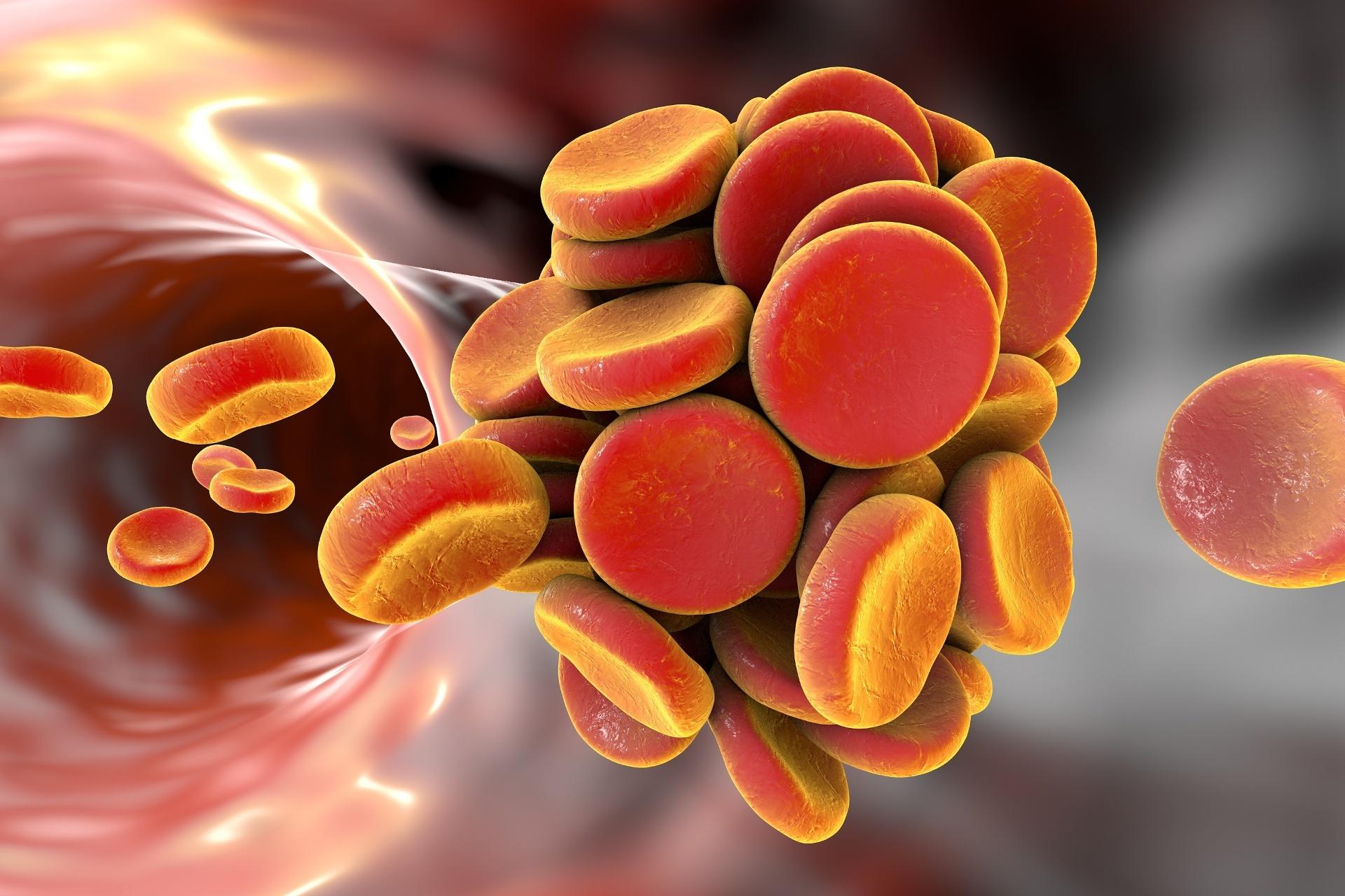 pesquisa da mutação da protrombina G20210A trombofilia hereditária perdas gestacionais trombose