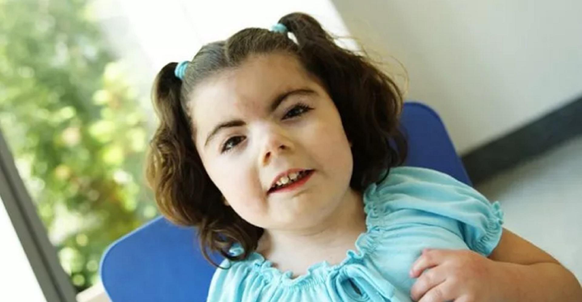 Síndrome Cornelia de Lange: conheça esta síndrome