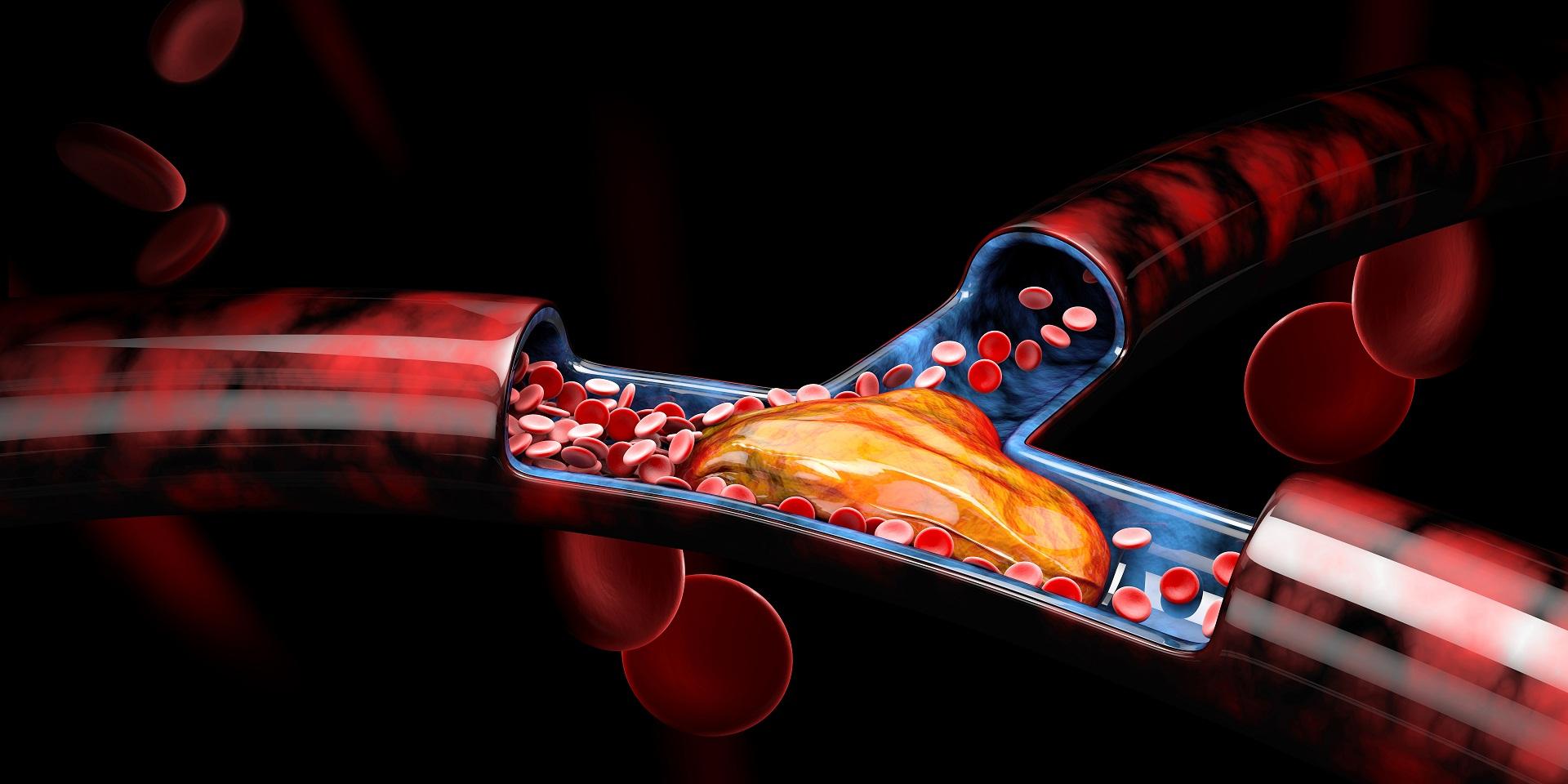 Deficiência da proteína S; dosagem da proteína S; trombofilia hereditária; perdas gestacionais, abortamento habitual, trombose venosa profunda (TVP).